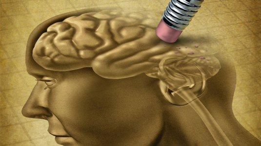 Alzheimer-535x300